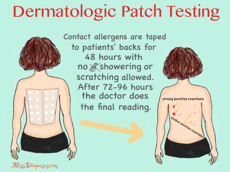 Drawing of dermatological patch testing