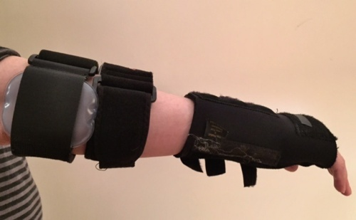 My arm with a carpal tunnel brace and two tendinitis braces